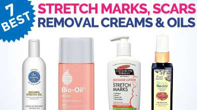 7 Best Stretch Marks Removal Creams and Oils in India with Price